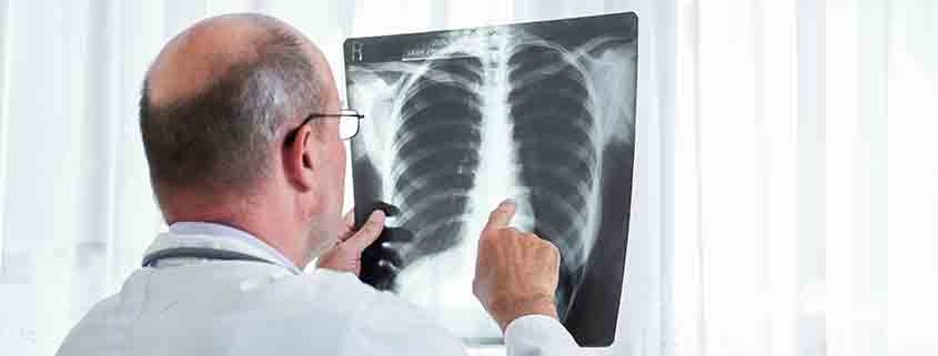 gas radón i càncer de pulmón